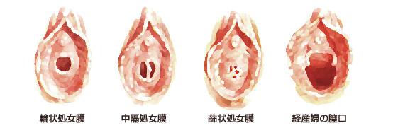 新生児 処女膜