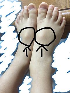 ガングリオンかなとも思いましたが、見事に左右対象です。自分の足も触ると同じような骨?がありますがここまで出ていません。 同じような方いますか?