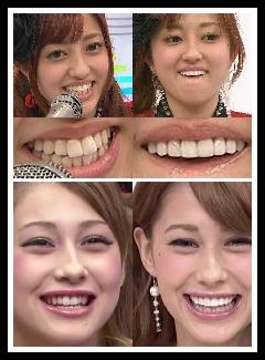 菊池亜美 歯